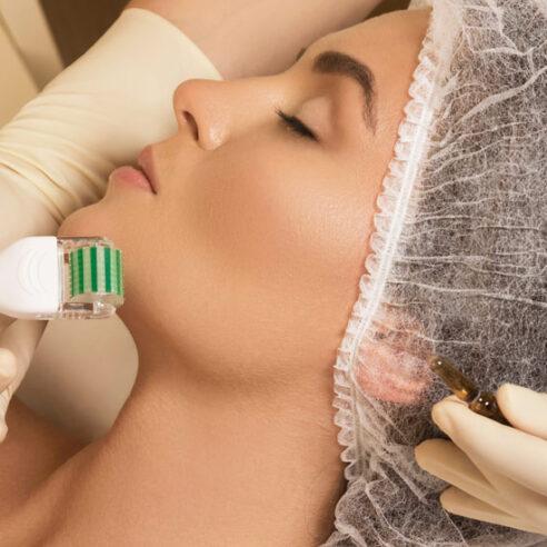 Face Microneedling Treatment Richmond Hill