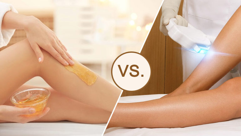Richmond Hill Laser Hair Removal Versus Waxing